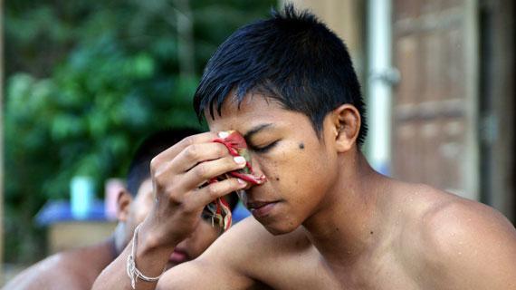 Chai trainiert bis zu acht Stunden am Tag. Die harten Schläge und Tritte hinterlassen nicht selten Gesichtsverletzungen, die er mit einer abschwellend wirkenden Kompresse behandeln muss. Bild: ARTE / © Medienkontor FFP
